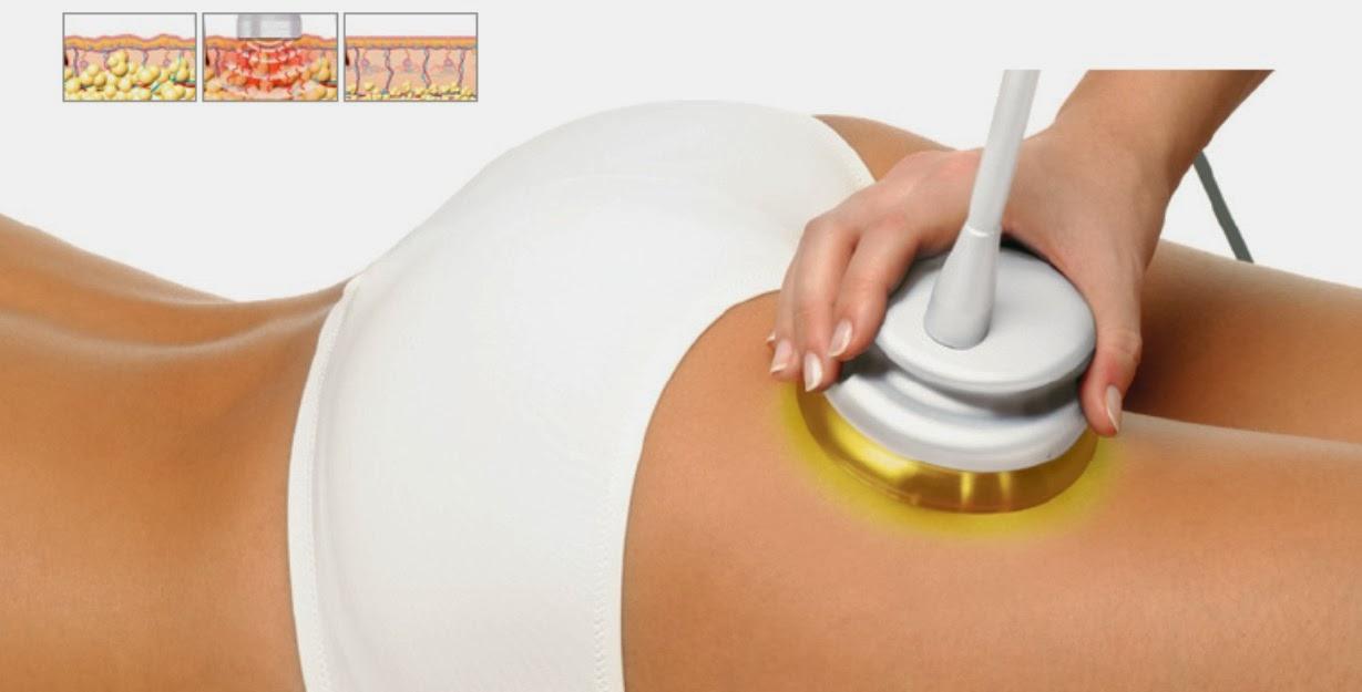 ¿Es seguro perder grasa con radiofrecuencia?