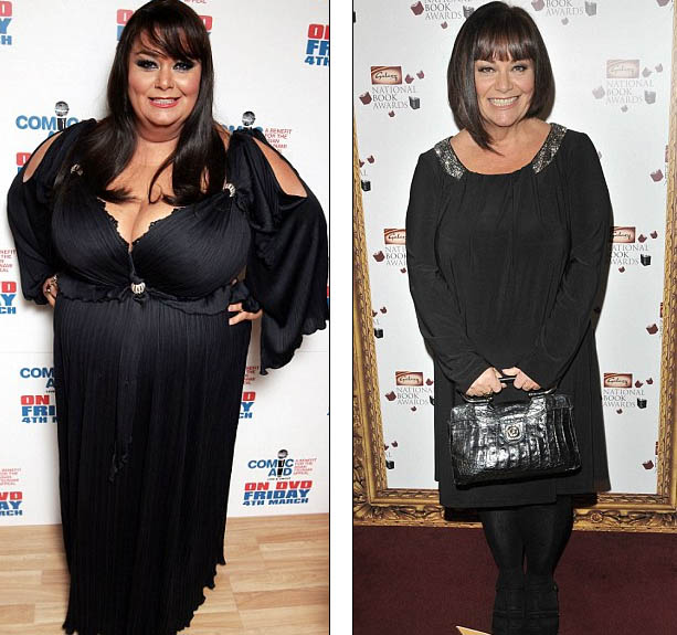 The gallery for --> Dawn French Weight Loss 2012