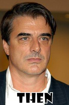 Chris Noth Plastic Surgery Before And After Eyelid Surgery