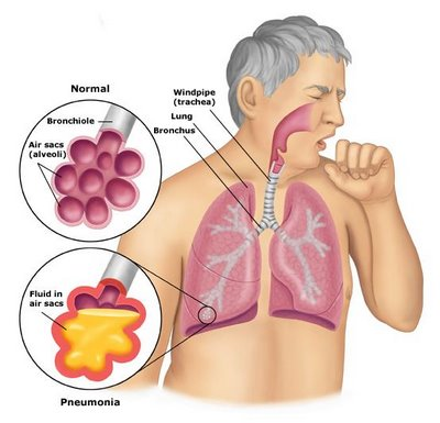 walking pneumonia - aspiration pneumonia ttreatment | walking, Cephalic Vein