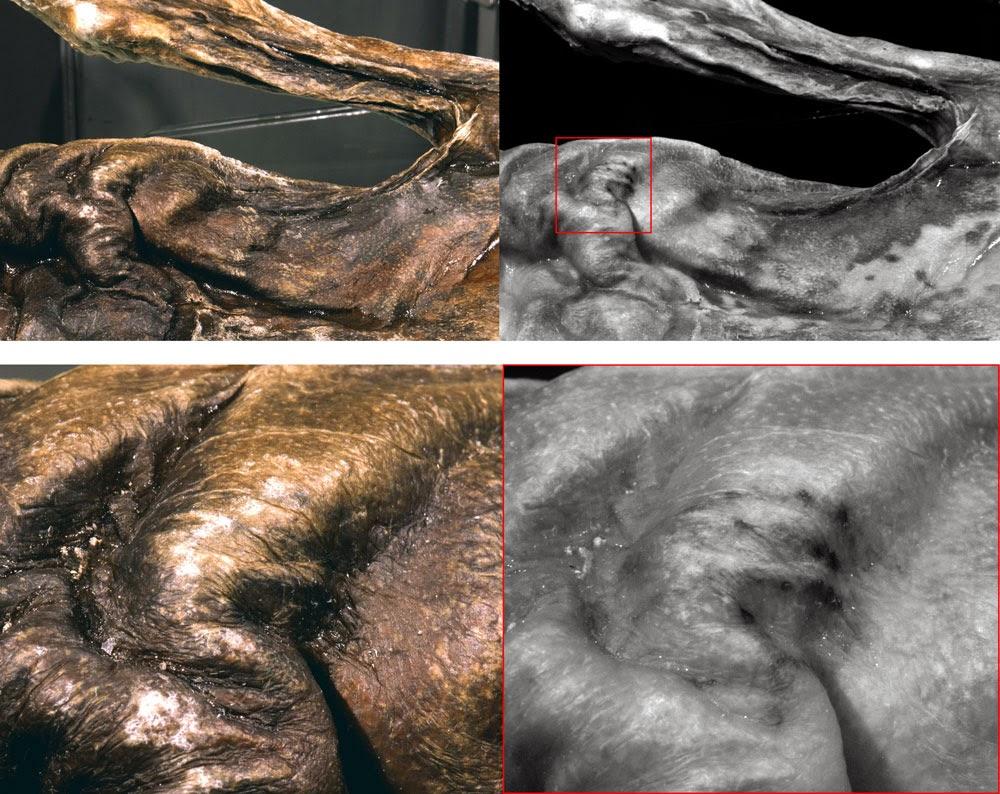 Ötzi: il tatuaggio sul torace: immagine a occhio nudo (sinistra) e immagine elaborata al computer (destra)