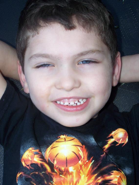 Peyton June 2011 before transplant