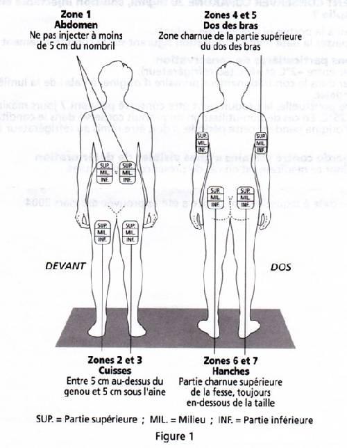 SCLEROSE EN PLAQUES - MS COPAXONE ET ALLERGIES dans !! Hôpitaux, médecins et Examens !! site+d%27injection+copax