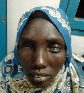 Mary Maytout 23 years old from South Sudan she has cornia and Ptosis