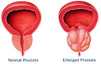Cara Menyembuhkan Kanker Prostat Secara Alami