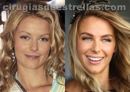 Cirugías de Jennifer Hawkins