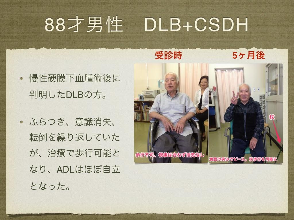 88歳男性 レビー小体型認知症と慢性硬膜下血腫を合併