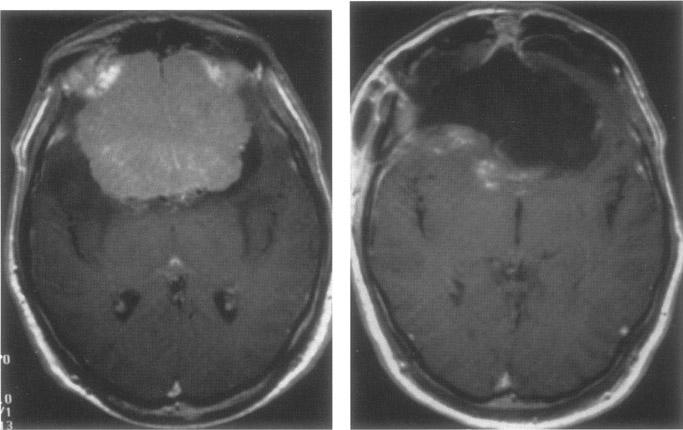 Gambling brain tumor