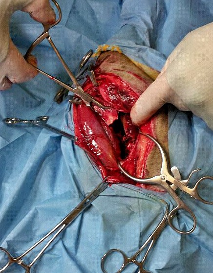 vista intraoperatoria  fractura conminuta de fémur