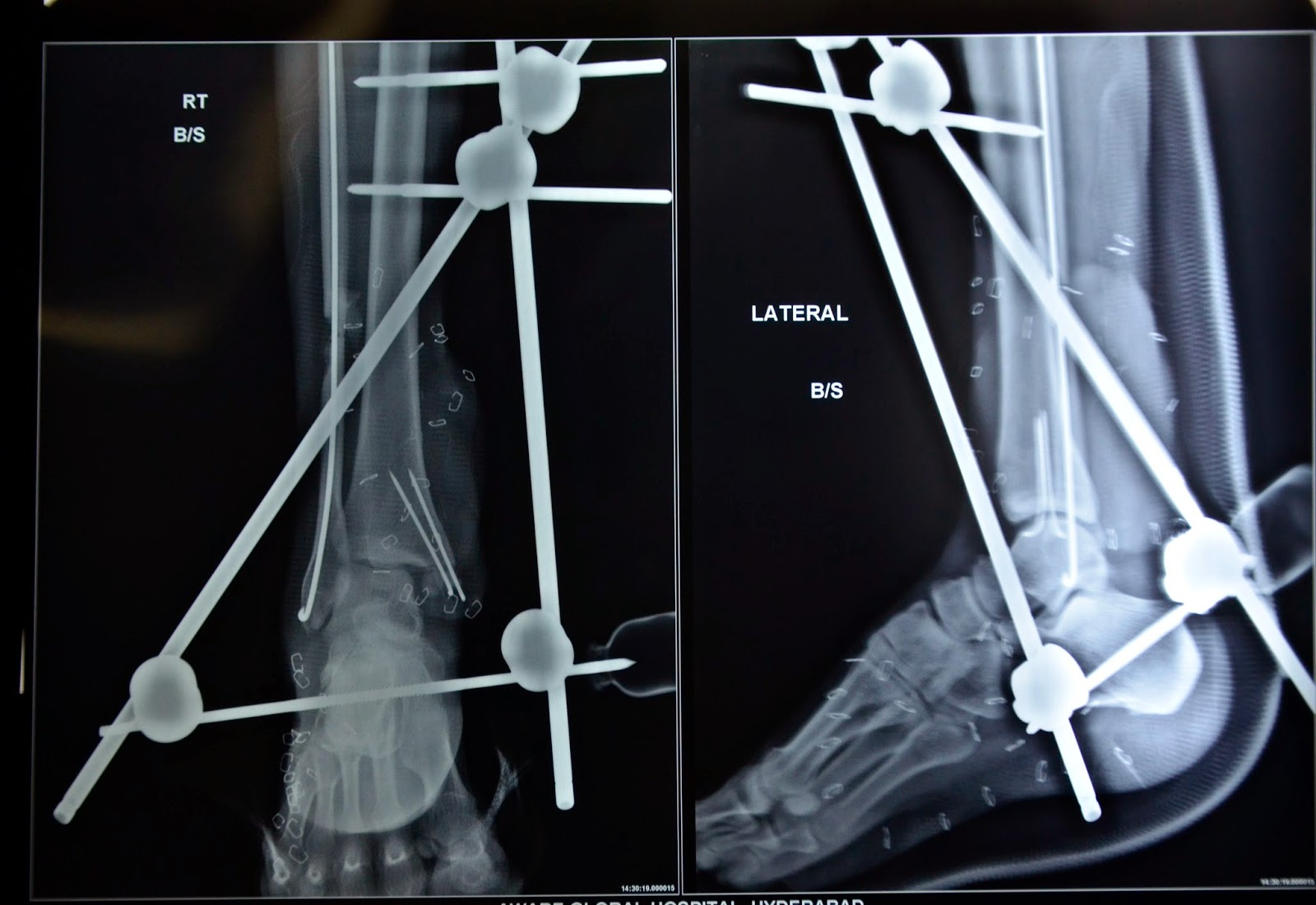 OPEN ANKLE JOINT FRACTURE DISLOCATION - DEBRIDEMENT - FREE GRACILIS -2.bp.blogspot.com