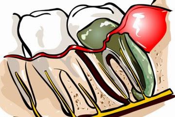 Abcès dentaire Après canal radiculaire