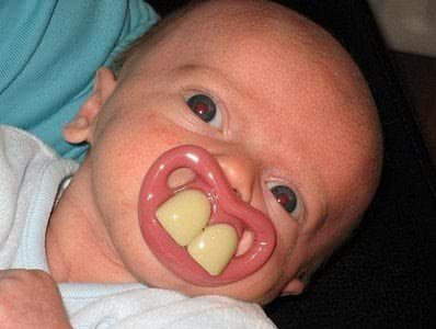 Ugliest Baby Ever baby...