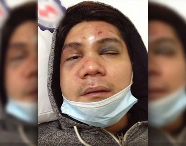 Vhong Navarro photo after the attack