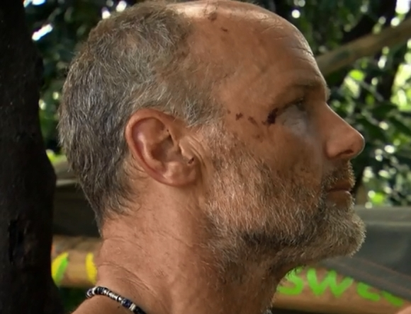 Survivor Mike Skupin Injuries