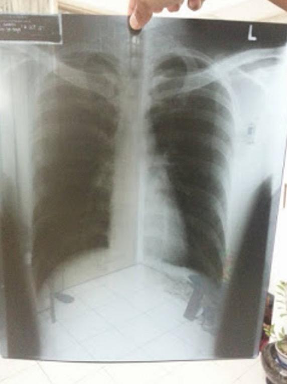 Hasil Berhenti Merokok dan Mula Hisap Vape yang Mengejutkan
