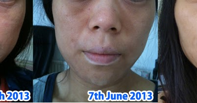dr fukaya topical steroid withdrawal