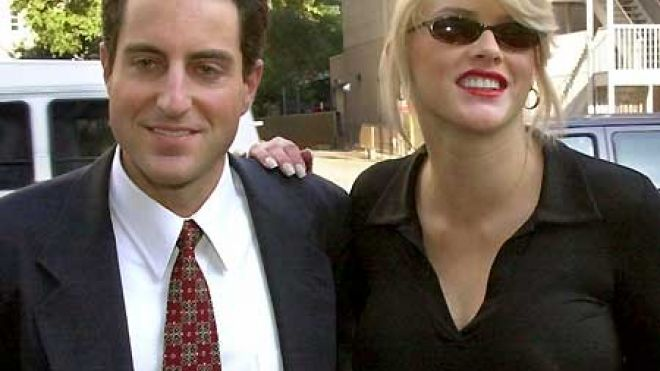 anna nicole smith plastic surgery