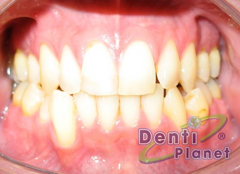 Blog ortodoncia dentiplanet cuanto tiempo tarda un for W de porter ortodoncia