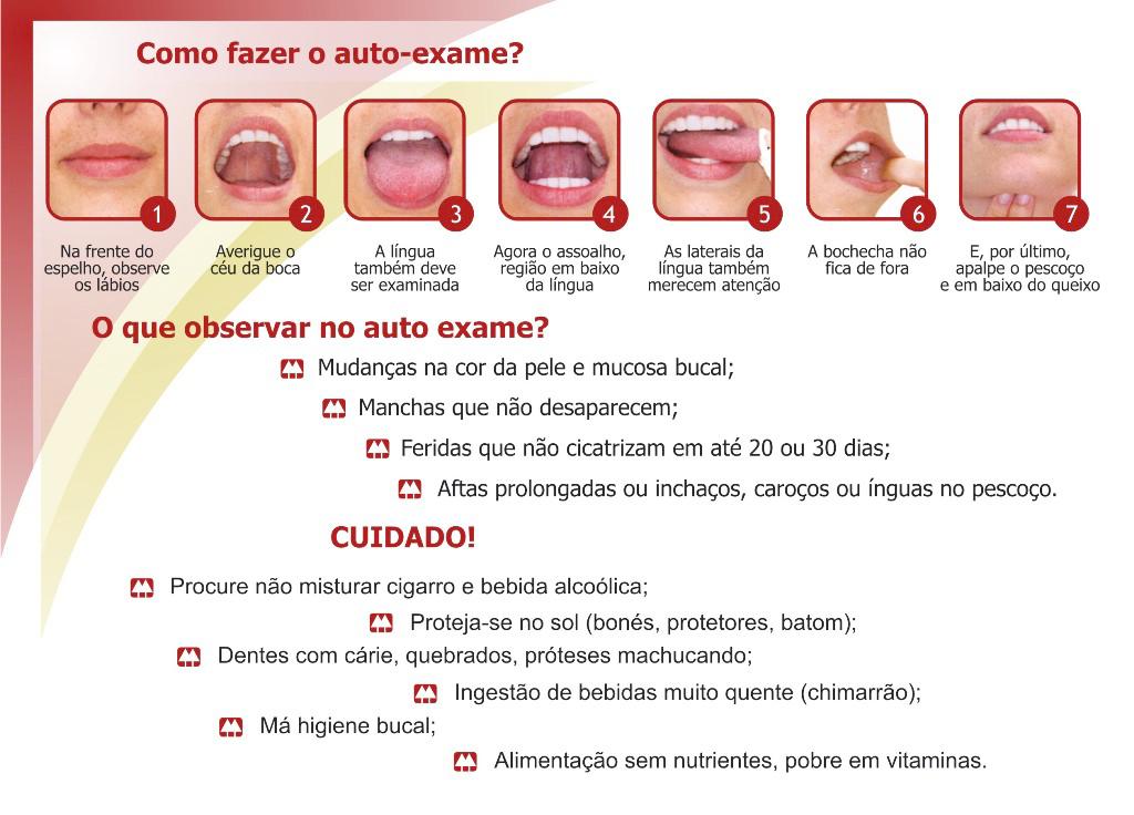 Como faz o exame preventivo