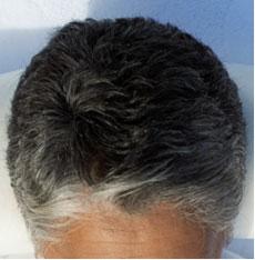 شيب شعر الرأس المبكر