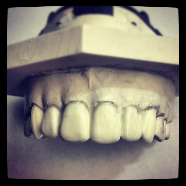 Dental School Anterior Waxup