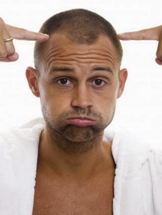 Creatine Hair Loss