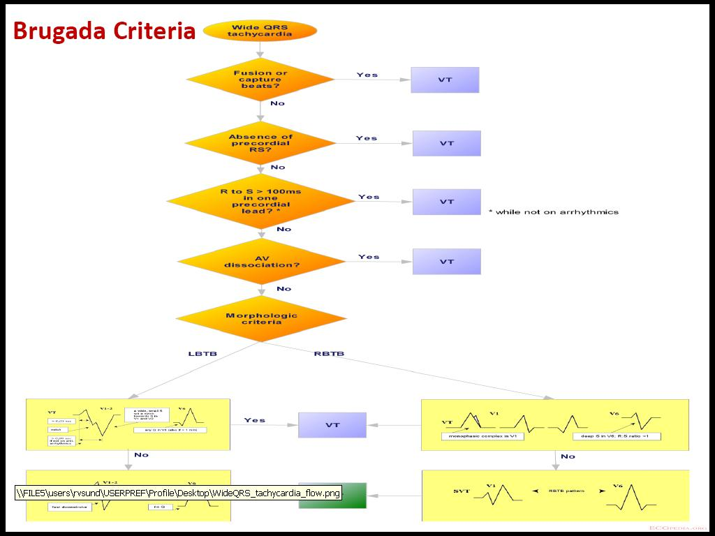 Brugada Criteria Pdf Document Free Medical Powerpoint