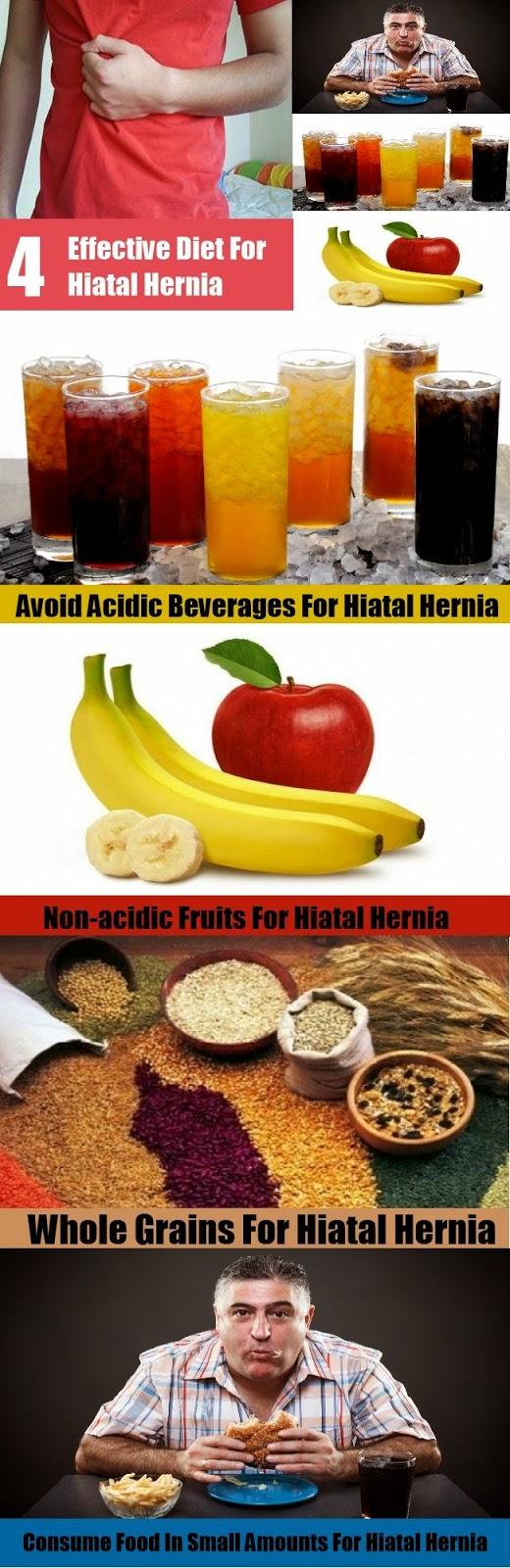 home remedies hiatal hernia
