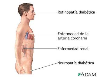 2 atkins diabetes diet type: