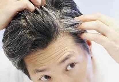 Mengapa Usia Muda Rambut Sudah Beruban ?