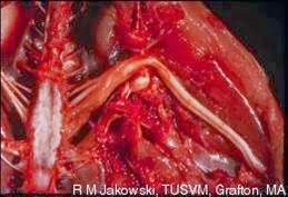 Hình 4: Thần kinh cơ đùi sưng to
