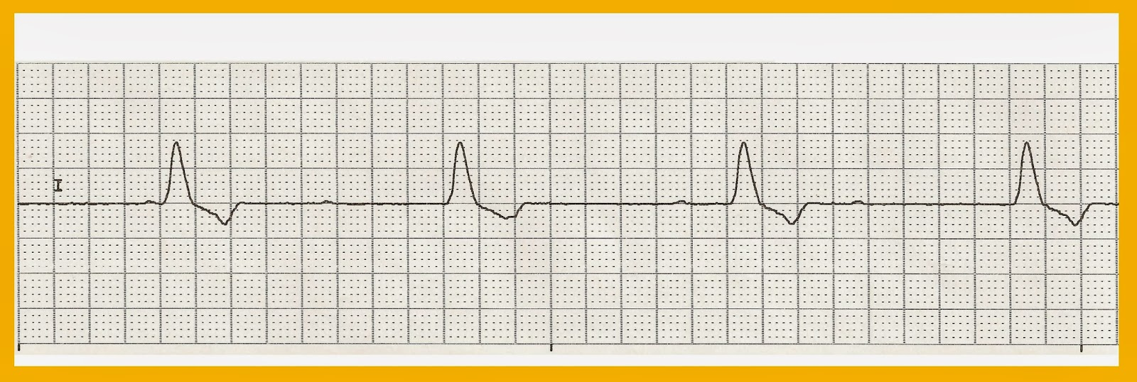 Blowjob cardiac monitor strip fucking gorgeous