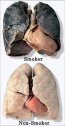 Smoking Lungs and Heart