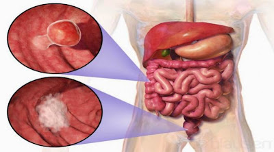 Bahayanya Kanker Usus Besar-Dubur