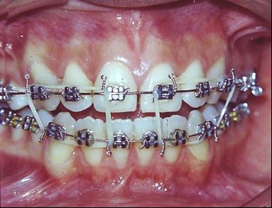 Aula virtual ortodoncia 3 mordida abierta etiolog a for W de porter ortodoncia