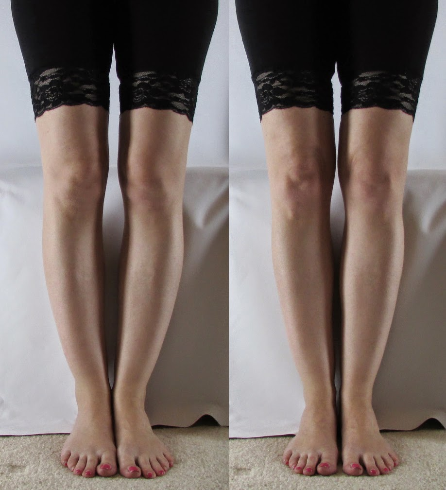 The Late Ballerina Tibial Torsions Effect On Ballet