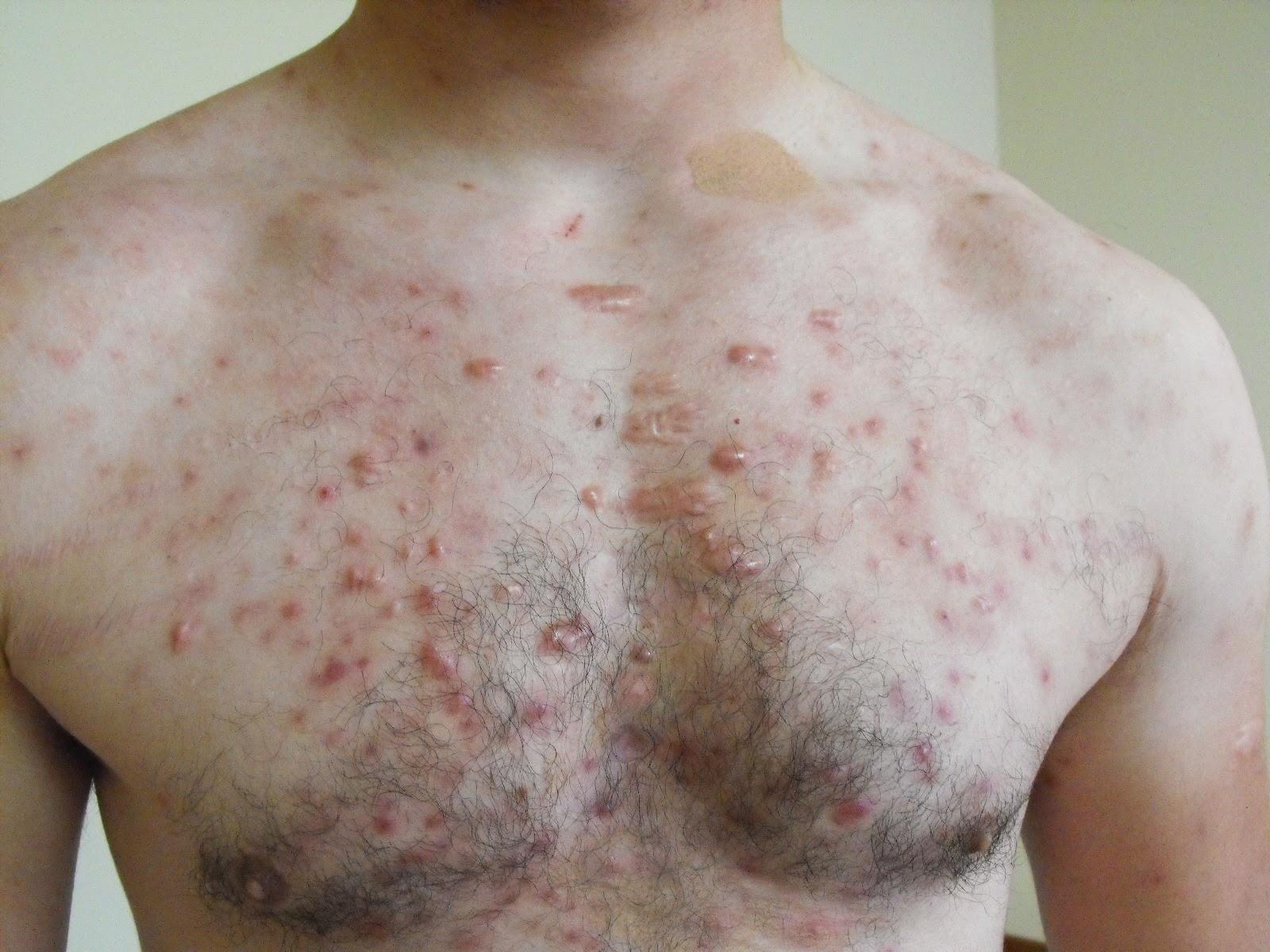 Dermatolog 237 A Y M 225 S Cosas 1 03 14 1 04 14