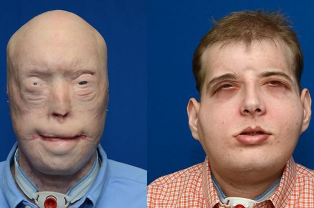 Firefighter Receives World's Most Extensive Face Transplant