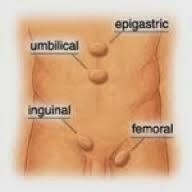 Obat Yang Dapat Menyembuhkan Penyakit Hernia