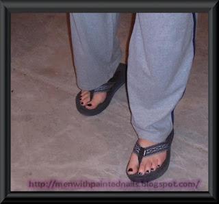 man wearing flip flops, nail polish and sweat pants