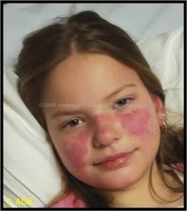 Cara Menyembuhkan Penyakit Lupus Anak