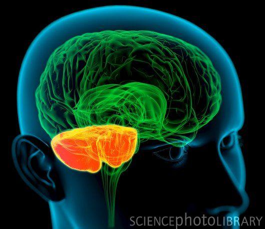 Redd's Voice: Cerebellar Stroke Recovery