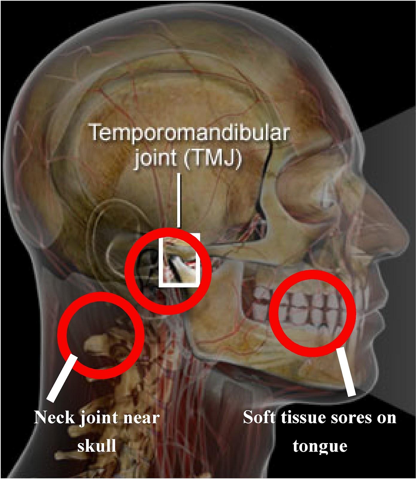 autoimmune joint pain