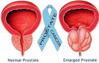 9 Gejala Kanker Prostat