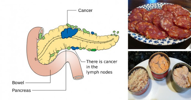 14 CANCER-CAUSING FOODS YOU SHOULD NEVER PUT IN YOUR MOUTH AGAIN