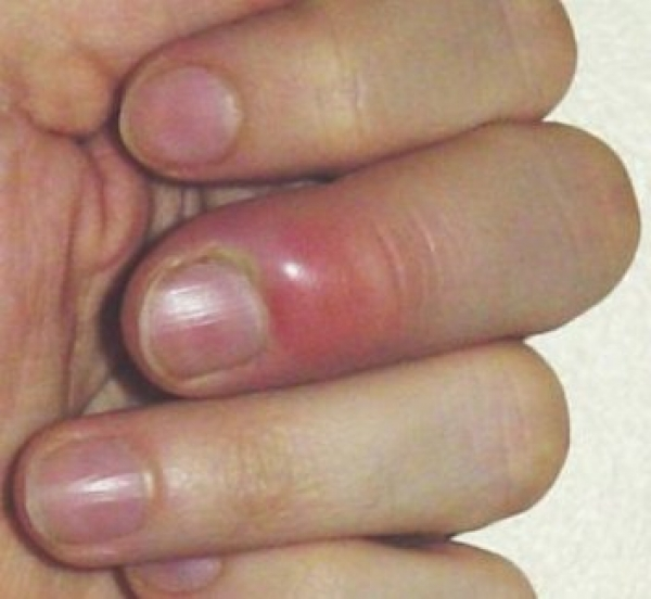 Don\'t bite your nails!! Read this to know why - extreme ideaz