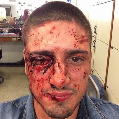 Daniel Rocha comemora sucesso da cena onde aparece ferido em 'Império'