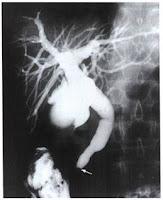 cholangiogram