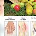 Gut Hastalığı Bitkisel Tedavisi