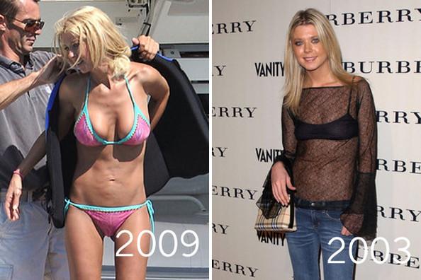 Tara reid plastic surgery boob